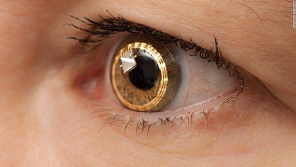 digital contact lenses-on-the-the-eye