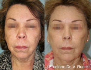 Fractora Skin Treatment - Before & After