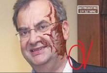 ΝΤΟΚΟΥΜΕΝΤΟ: Η ακτινογραφία ενός φασίστα ΣΥΡΙΖΑίου σιωνιστή!!!! Γιατί βγήκες στον προαύλιο χώρο βρε προαυλισμένε μου????