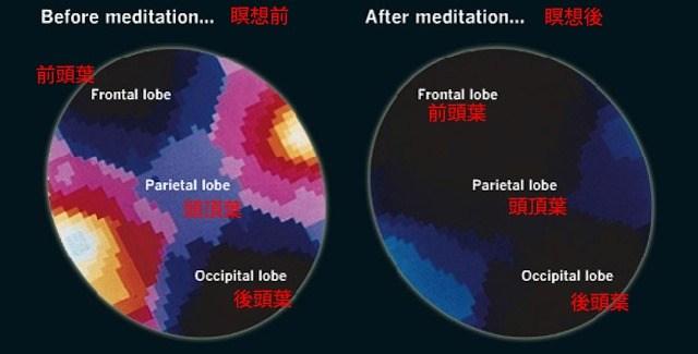 瞑想時の脳内スキャン