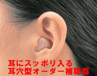 耳穴オーダー補聴器 土浦