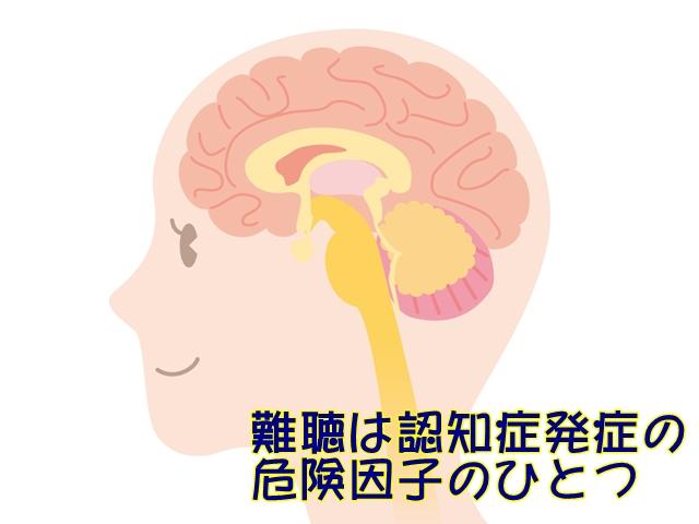 補聴器 認知症 難聴