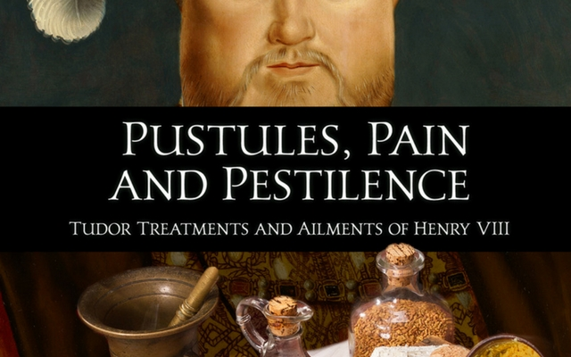 Tudor Treatments and Ailments of Henry VIII (Guest Post)