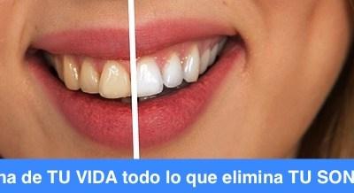 Alimentos y Bebidas que manchan los dientes