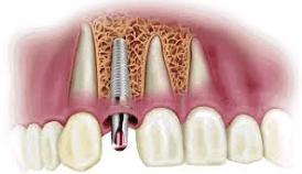 implante dental |www.tuimplantedental.es