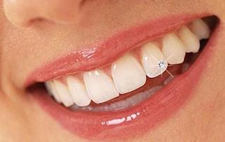 Brillantito en el diente