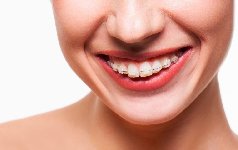 No dejes de lado revisar tu ortodoncia