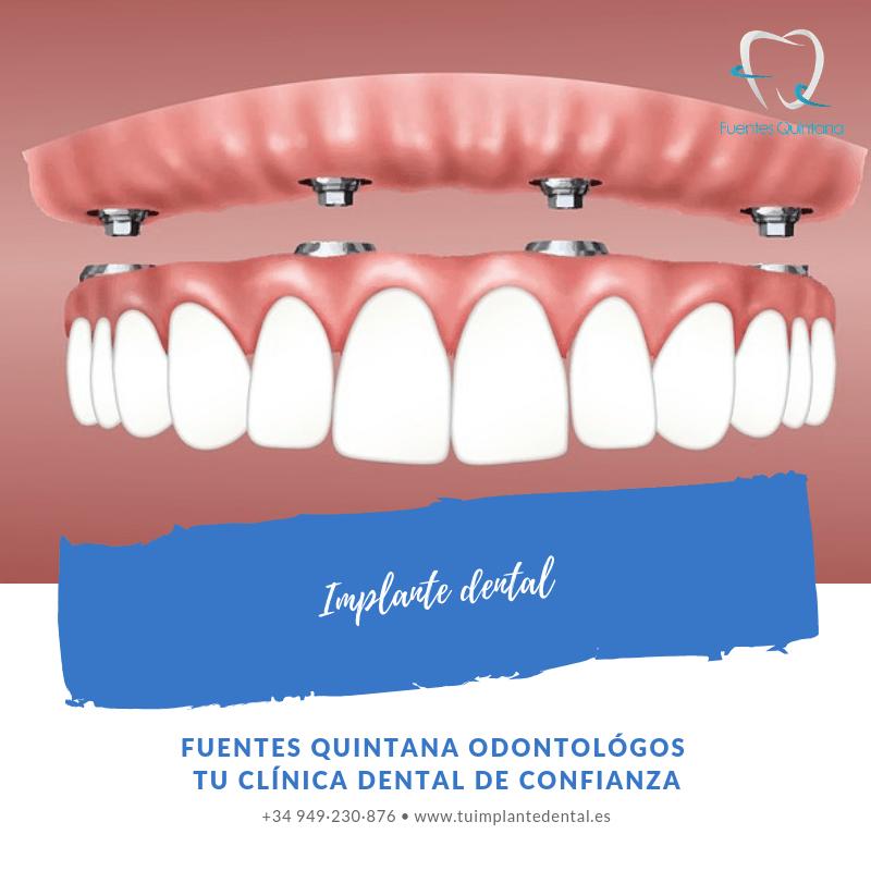 """implante dental Clínica Fuentes Quintana odontólogos Guadalajara"""