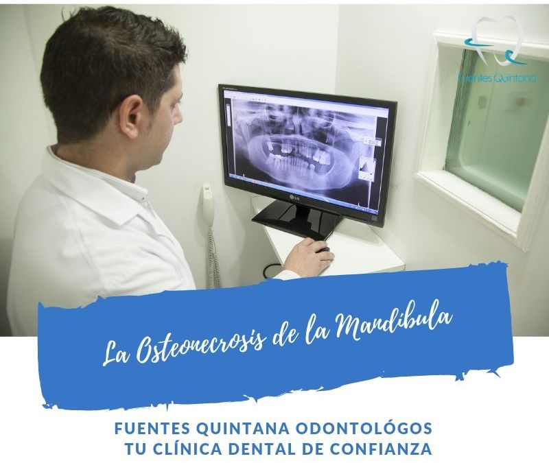 La Osteonecrosis de la Mandíbula