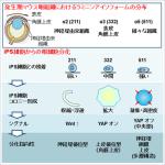 失明状態の女性が視力回復 大阪大がiPS細胞角膜移植