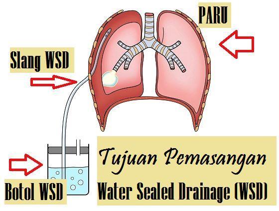 Tujuan Pemasangan Water Sealed Drainage (WSD)