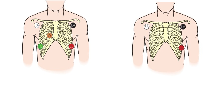 Basic Electrocardiogram NORMAL and Electrode Placement