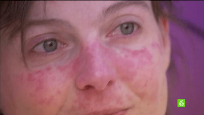 Nuria Zúñiga- lesiones cutáneas del lupus