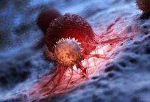 Photo of منظمة الصحة العالمية:معدلات الإصابة بالسرطانسترتفع بنسبة 60٪