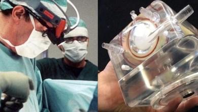Photo of كورونا: شفاء المريضة التي تم معها لأول مرة إستعمال الرئة الإصطناعية