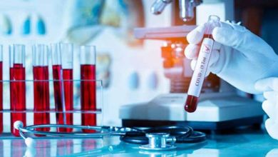 Photo of فيروس كورونا: فرنسا تسجل أدنى نسبة وفيات منذ أيام