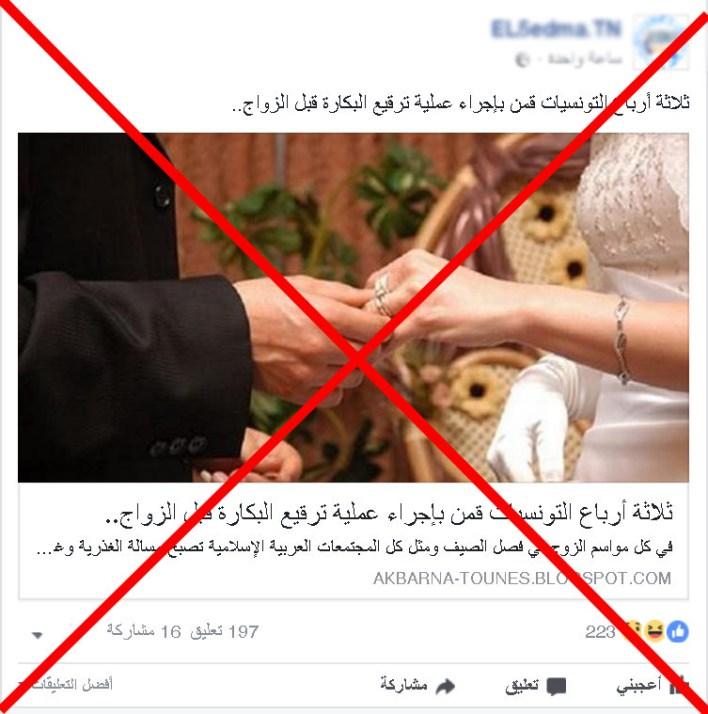 تكذيب-خبر-أن-ثلاثة-أرباع-التونسيات-أجرين-عملية-ترقيع-قبل-الزواج