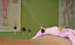 A patient being treated with acupuncture moxibustion