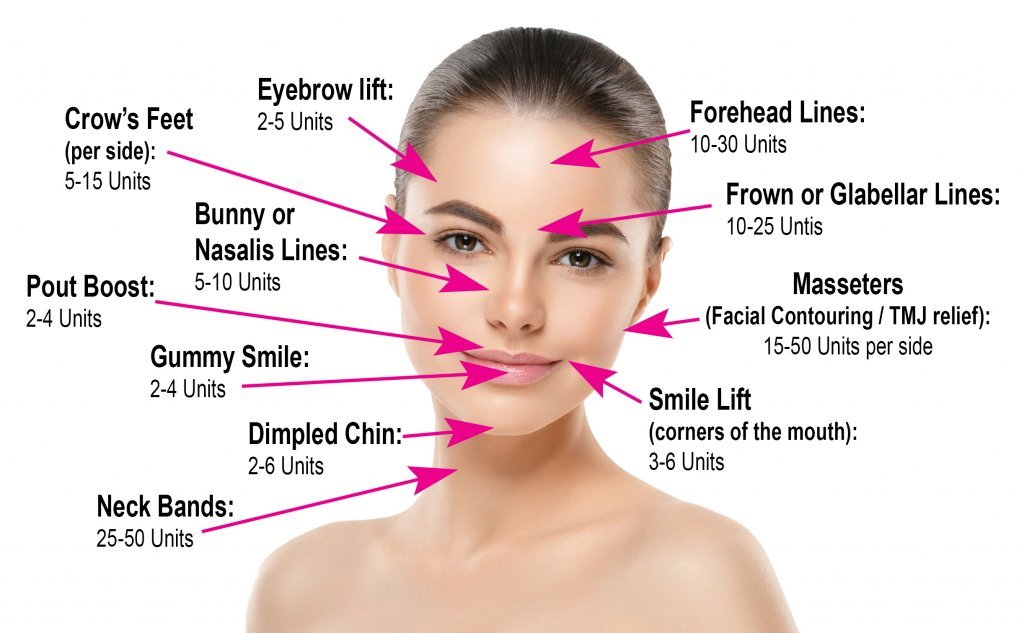 How Much Botox Do I Need?