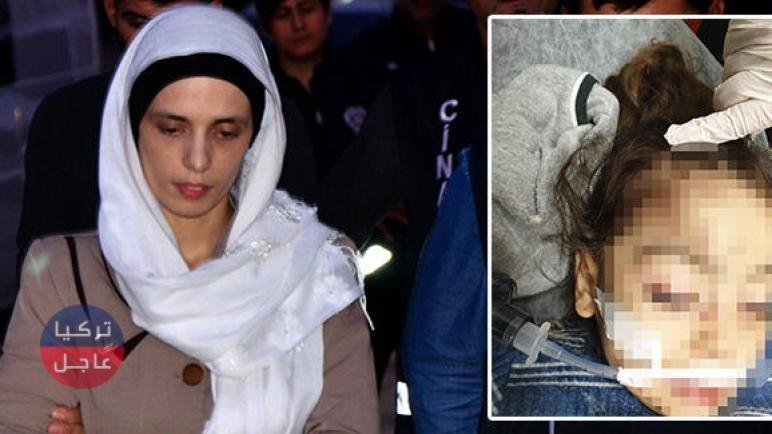القبض على زوجة سورية في أضنة سببت نزيف دماغي لطفلة زوجها