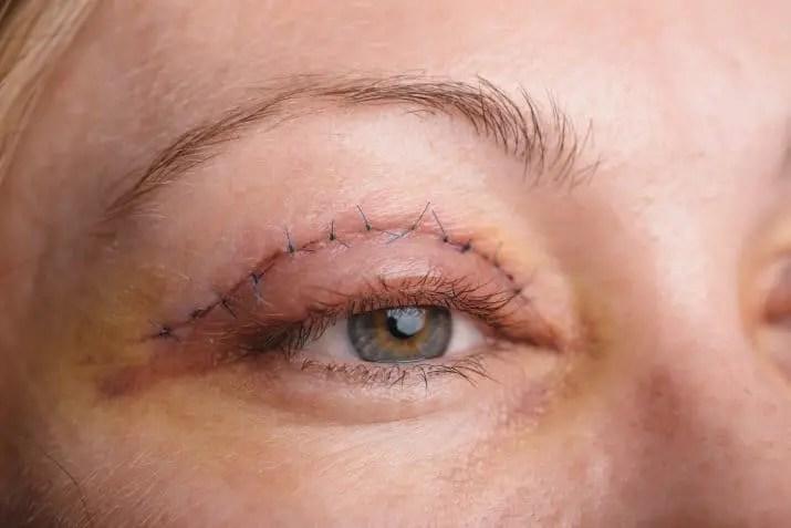 مخاطر عملية شد الجفون بين متطلبات الجمال وتحسين وظائف العين