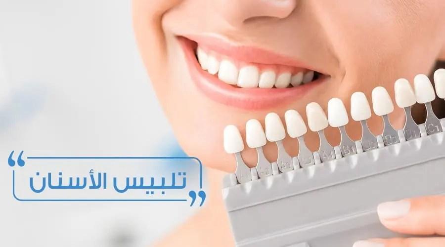 تلبيس الأسنان أو التيجان الصناعية الأسعار وطريقة العلاج