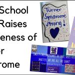 high school club raises awareness of turner syndrome