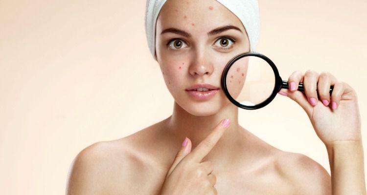 phys-ac a-derma acne