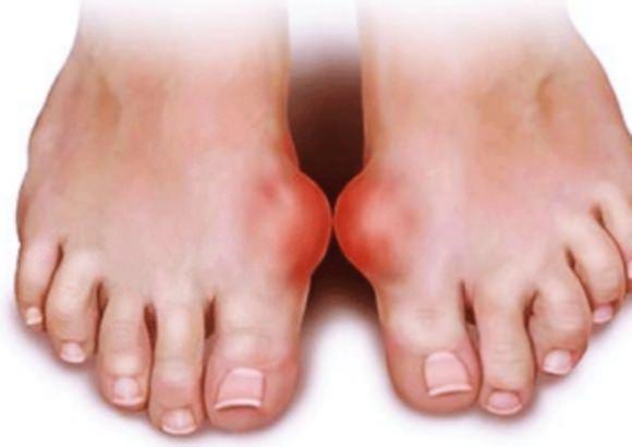 急性関節炎によって出てくる腫れや痛み