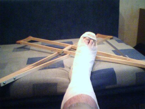сломанная нога в гипсе фото Футбол