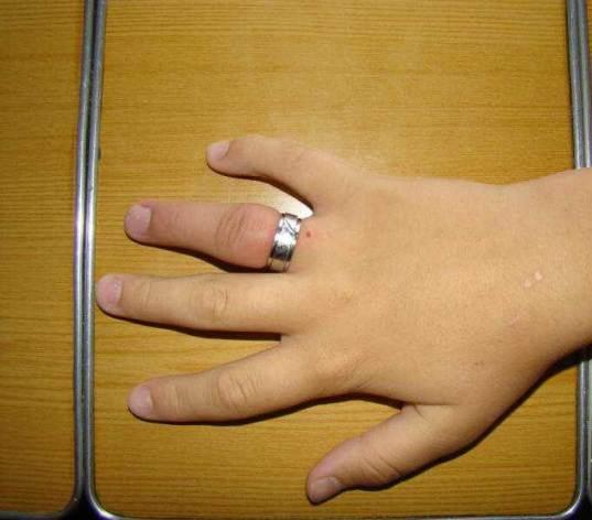 Как-снять-застрявшее-кольцо-с-пальца-Полезные-советы-и-рекомендации-4