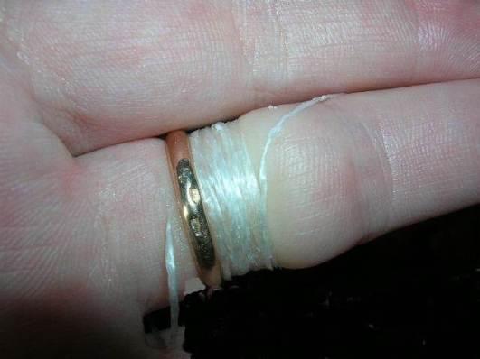 Как-снять-застрявшее-кольцо-с-пальца-Полезные-советы-и-рекомендации-5