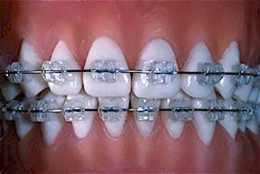 Украшение-зубов-бриллиантами-стразами-скайсами-и-твинклами-11
