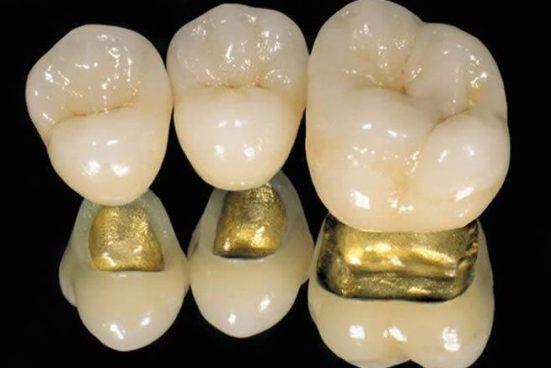 Медицинское золото. Свойства и применение медицинского золота