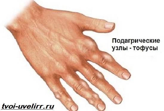Мочевая-кислота-Свойства-норма-диеты-и-факты-о-мочевой-кислоте-3