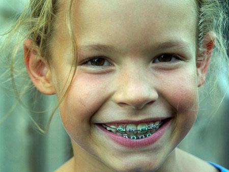 Какие брекеты лучше подойдут для подростка и почему нужно исправлять прикус в этом возрасте