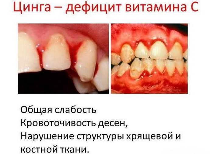 Опух язык что делать и насколько это опасно