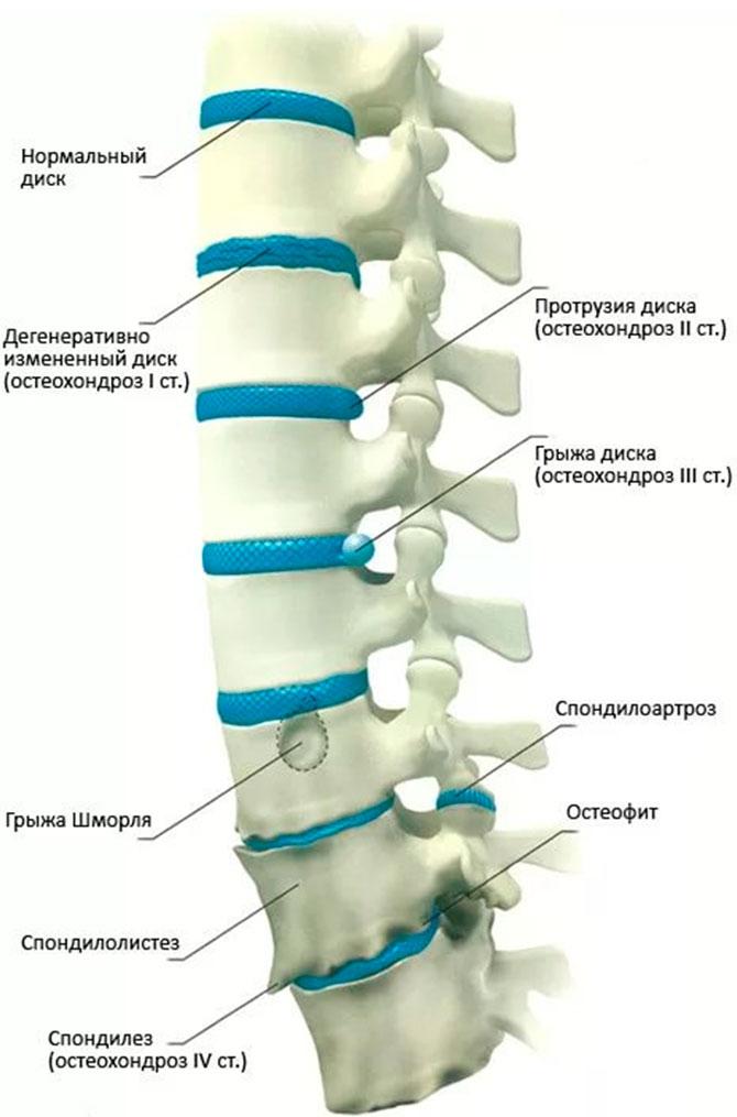 poate scădea în greutate ajută stenoza coloanei vertebrale
