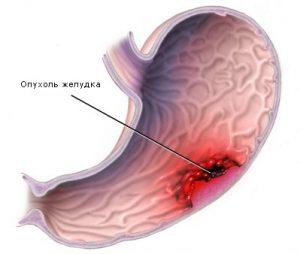 Что значит подслизистое образование желудка