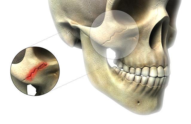 Рак верхней челюсти на что надеяться. Симптомы и лечение рака челюсти. Лечение рака челюсти