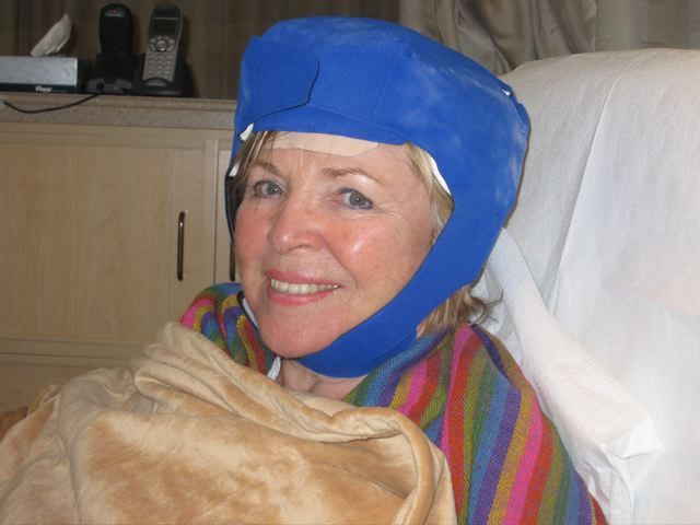 How I Kept My Hair During Chemotherapy