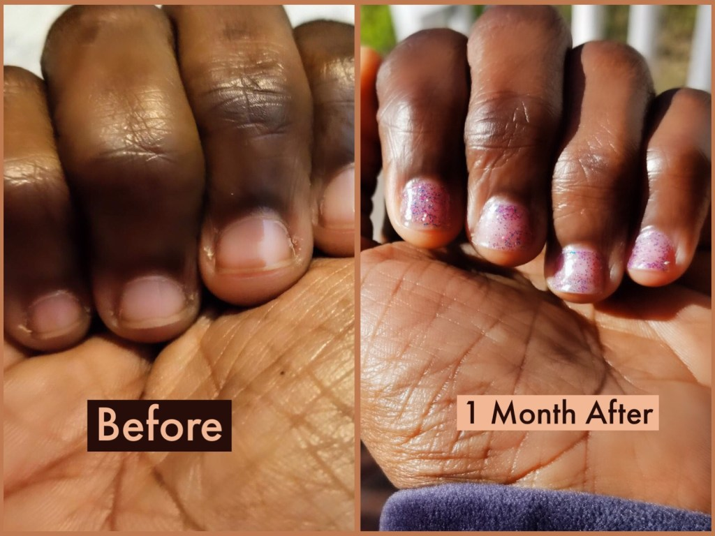 Quit Nail Biting Nail Growth Manicure Products Twists