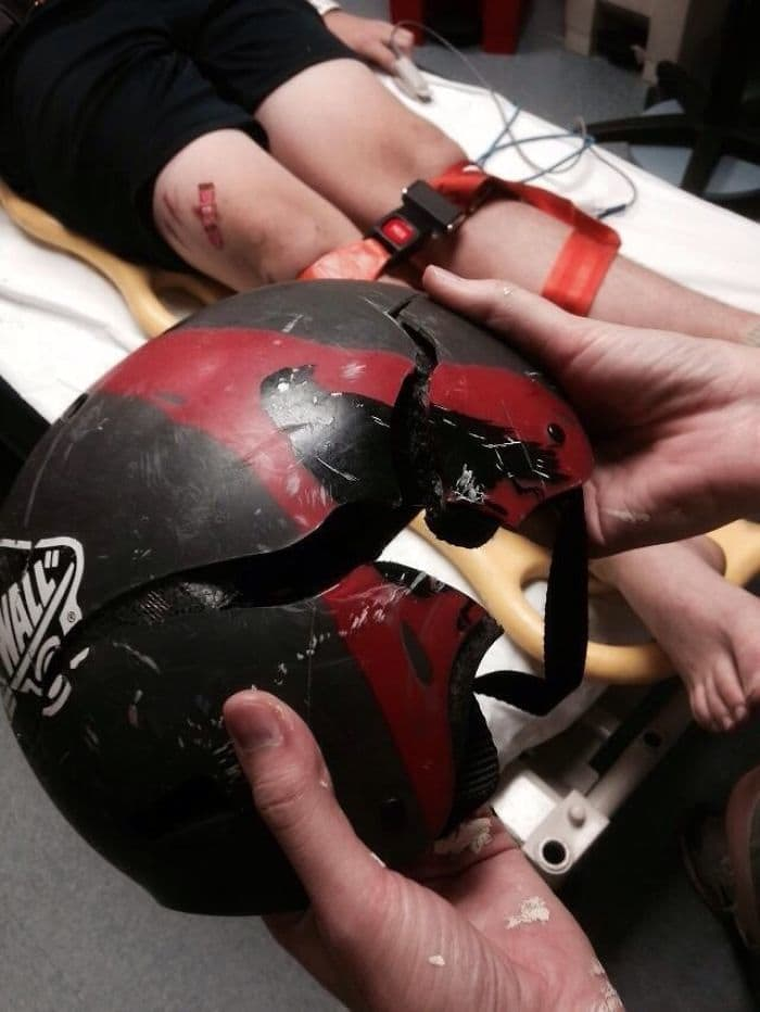 And This, Kids, Is Why We Wear Helmets When We Skateboard
