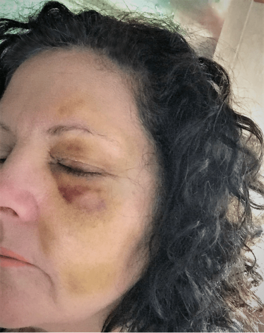 Photo of Bruises after a fall. Day 11, May 2015