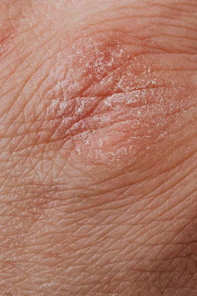 close up view of human dry skin