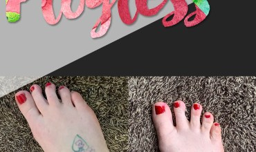 tattoo removal progress, before and after tattoo removal progress, laser tattoo removal