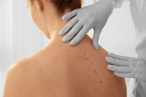 dermatologist examining moles on woman's back