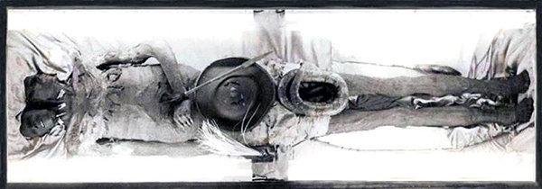 I presunti resti mummificati di Kap Dwa il gigante a due teste