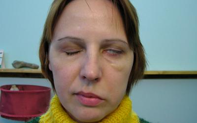 Частичный паралич мышц лица - Угодие