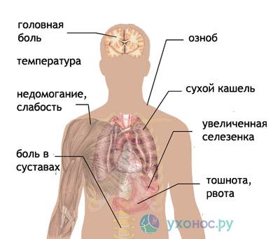 malarie plasmodică)